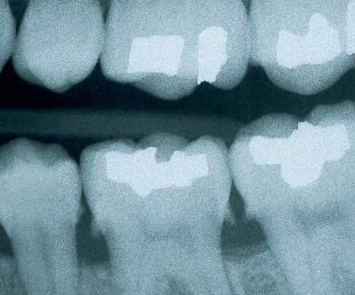 calculus xray radiograph seattle dentist 1