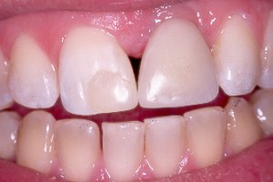 dental filling front teeth-#40